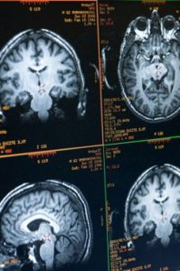 A computer monitor displays graphic renderings of Buddhist monk Matthieu Ricard's brain as Ricard participates in a functional magnetic resonance imaging (fMRI) test at the MRI facility in the Waisman Center at the University of Wisconsin-Madison on June 4, 2008. Ricard is a longtime participant in an ongoing research study led by Richard J. Davidson that monitors a subject's brain activity and the impact of meditation on pain regulation. Davidson is director of the Waisman Lab for Brain Imaging and Behavior (WLBIB) and the William James and Vilas Professor of Psychology and Psychiatry. ©UW-Madison University Communications 608/262-0067 Photo by: Jeff Miller Date: 06/08 File#: NIKON D3 digital frame 2676