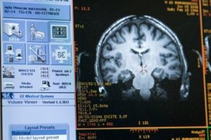 A computer monitor displays graphic renderings of Buddhist monk Matthieu Ricard's brain as Ricard participates in a functional magnetic resonance imaging (fMRI) test at the MRI facility in the Waisman Center at the University of Wisconsin-Madison on June 4, 2008. Ricard is a longtime participant in an ongoing research study led by Richard J. Davidson that monitors a subject's brain activity and the impact of meditation on pain regulation. Davidson is director of the Waisman Lab for Brain Imaging and Behavior (WLBIB) and the William James and Vilas Professor of Psychology and Psychiatry. ©UW-Madison University Communications 608/262-0067 Photo by: Jeff Miller Date: 06/08 File#: NIKON D3 digital frame 2684